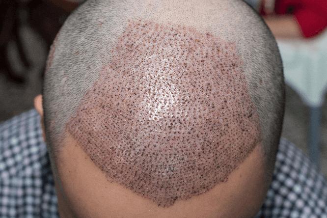 کاشت مو در اندیشه شهریار